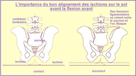 inflammation nerf sciatique traitement